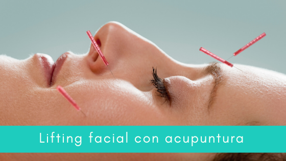 Lifting facial acupuntura mallorca
