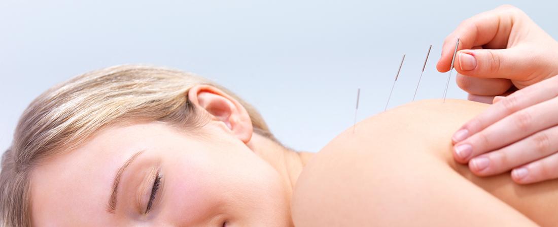 acupuntura en mallorca